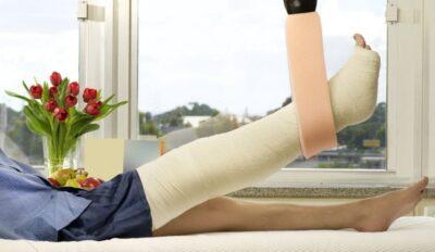 Mann mit gebrochenem Bein im Krankenhaus