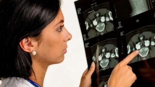Eine Ärztin hält das Röntgenbild einer Bandscheiben Infiltrierung in der Hand.