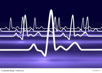 Grafik EKG
