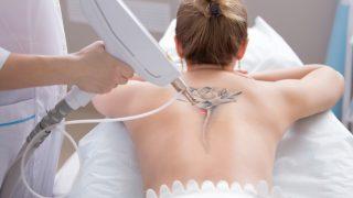 Tattoo-Entfernung mit Laser