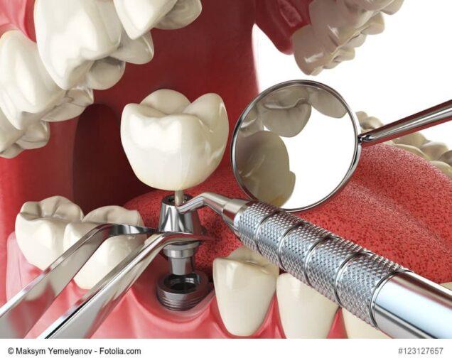 Zahnarzt-Instrumente am Gebissmodell