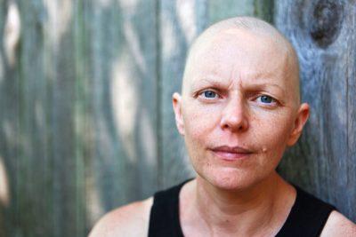 Frau mit Glatze blickt skeptisch