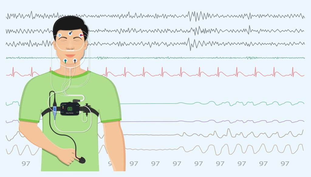 Patient mit EKG